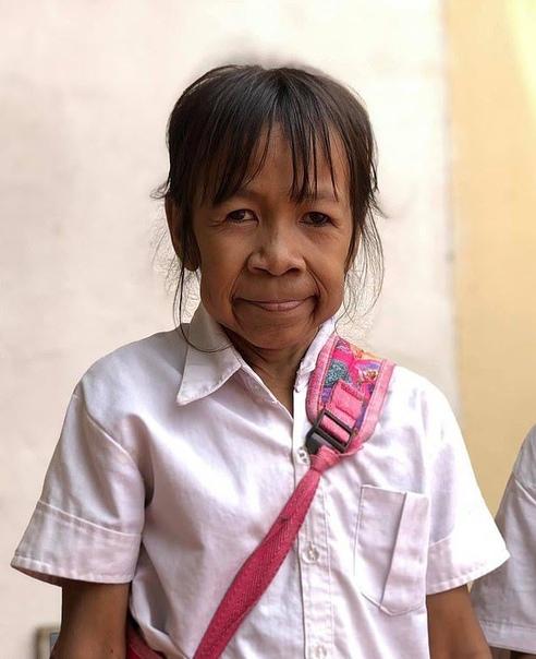 10-летняя девочка в теле пенсионерки 10-летнюю девочку Бо из Камбоджи посторонние часто принимают за пожилую женщину. И немудрено - ее кожа вся в складках и морщинах, что присуще пенсионерке, но