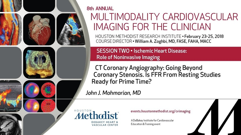 CT Coronary Angiography Going Beyond Coronary Stenosis JOHN J MAHMARIAN MD