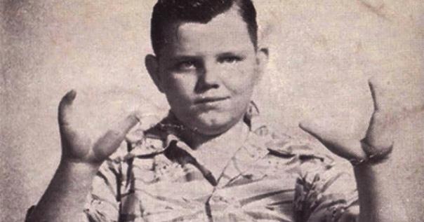 Преступления Мальчика-Лобстера Грэди Стайлз-младший, который стал известен как «Мальчик-Лобстер», родился в Питтсбурге в 1937 году. Он унаследовал эктродактилию рук и ног, из-за чего имел