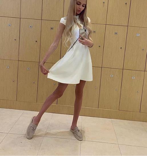 Алена Шишкова продолжает худеть!