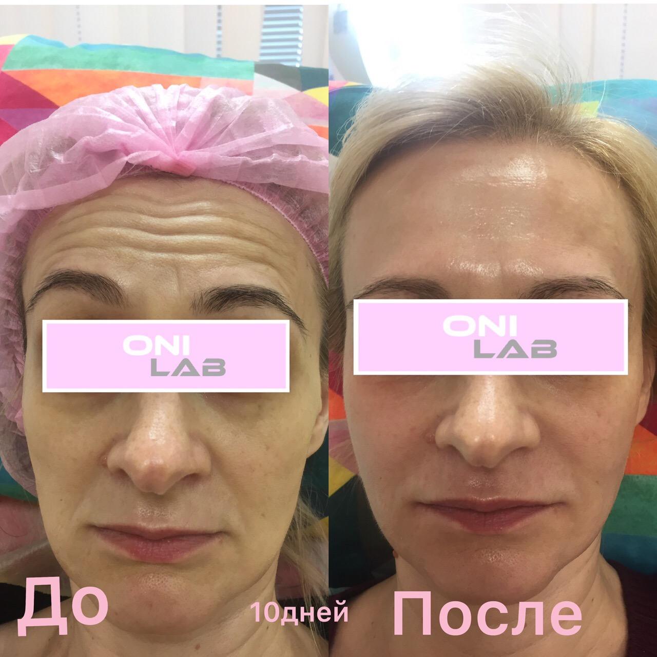Срочно‼️требуются модели «для портфолио на сайт и в instagram» на инъекционную косметологию (Косметолог с опытом работы 7 лет)